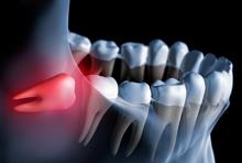 Extraction dentaire de dent de sagesse