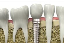 Pose Implant
