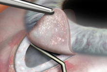 Trabéculectomie