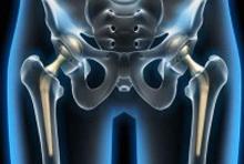 Prothése de la hanche