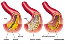 Dilatation coronaire