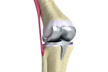 Prothése de la genou