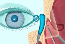 La dacryo-cysto-rhinostomie (DCR)