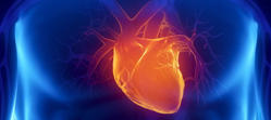 Cardiologie interventionnel
